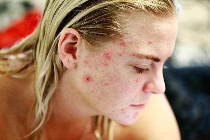 Can Healing the Gut Heal Hormonal Acne?